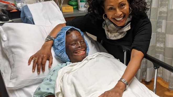 Atsede Nguse, une éthiopienne défigurée à l'acide par son mari