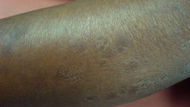 soigner la peau sèche naturellement