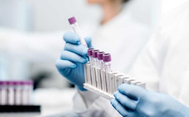 Coronavirus, l'Agence Universitaire de la Francophonie lance un appel à projets international
