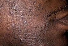 Photo of Bien-être : comment combattre les boutons après-rasage ?