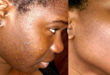 Photo of Bien-être : des astuces simples et efficaces pour traiter l'acné