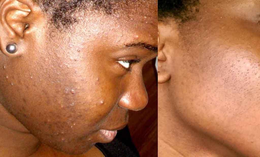 traiter l'acné