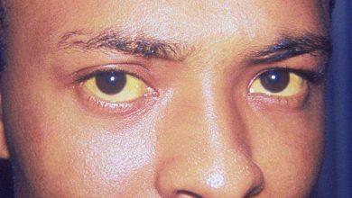 Les yeux d'un homme noir atteint de l'ictère la jaunisse