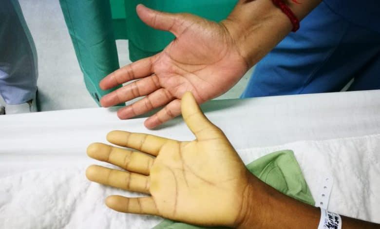 Symptômes de l'anémie